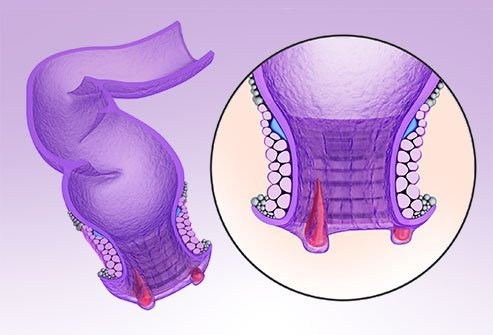Illustration of an anal fissure.