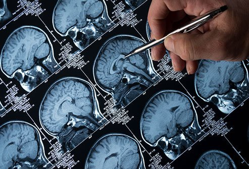 Antiepileptic and anticonvulsant are both terms that refer to the same drugs that target different neural pathways to reduce seizure episodes in people with epilepsy disorders.