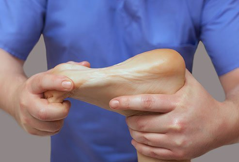Trauma, sprains, strains, fractures, and arthritis are common causes of arch pain.