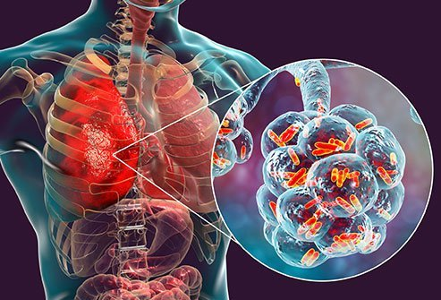 Pneumonia is a fungal, viral, or bacterial infection of the lungs.