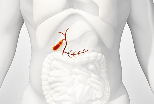 Abdominal pain and jaundice are signs and symptoms of bile duct cancer.