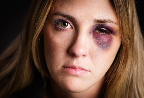 Picture of a woman with a black eye.