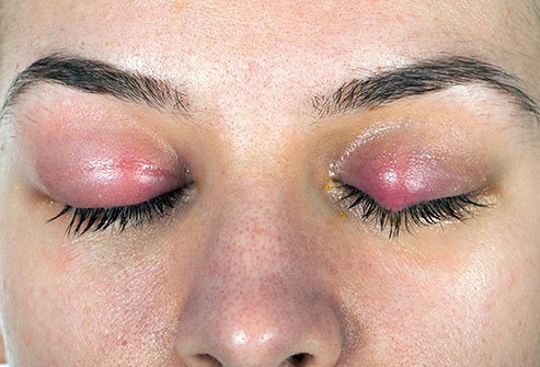 Eyelid redness can be a sign of blepharitis.