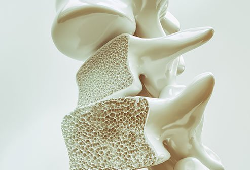 Bone loss occurs when bone deterioration (resorption) outpaces new bone growth, leading to a brittle skeleton.