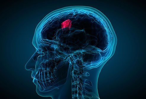 Brain cancer treatment depends on the tumor's size, type, and location.