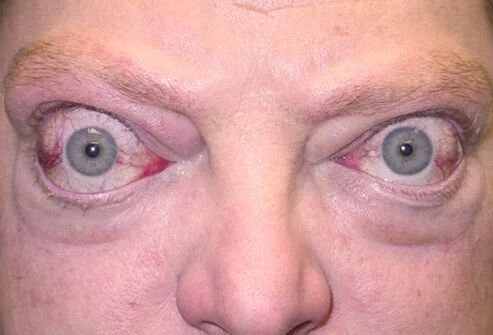 Exophthalmus or bulging eyes is most commonly a symptom of a thyroid disorder called Grave's disease, but may have other causes as well.