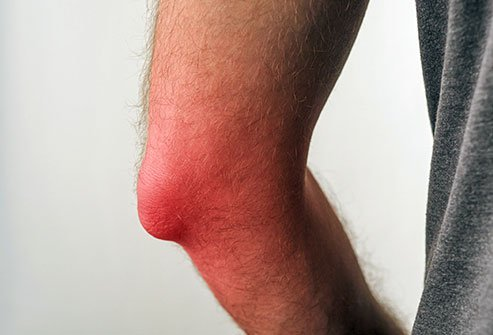 Picture of a man with bursitis of the knee.