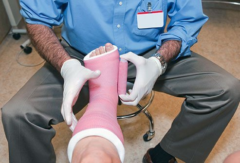 Picture of a healthcare professional putting a pink cast on a patient's lower leg.