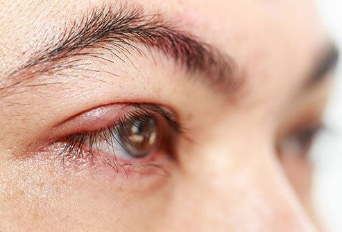 A chalazion is a lump on the eyelid caused by the obstruction of an oil gland.