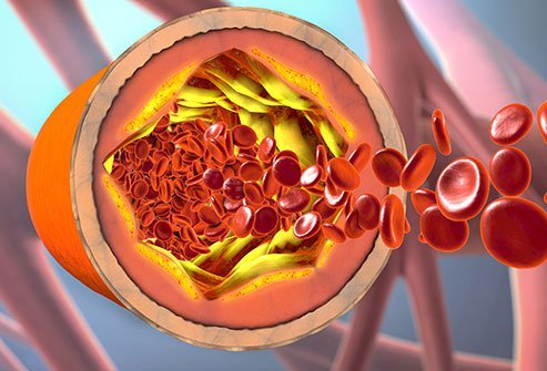 Cholesterol Level Charts Normal High Low Levels Results