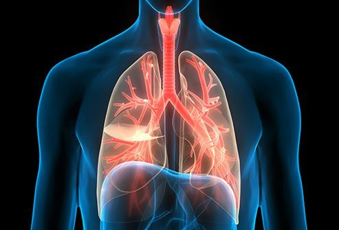 Chronic bronchitis, or airway inflammation, can be caused by smoke, infection or allergens and pollutants.
