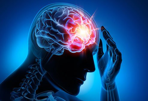 Concussions, or traumatic brain injuries, can be mild or severe.