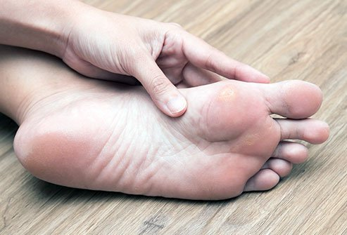 Corns And Calluses Treatment Symptoms Signs Causes