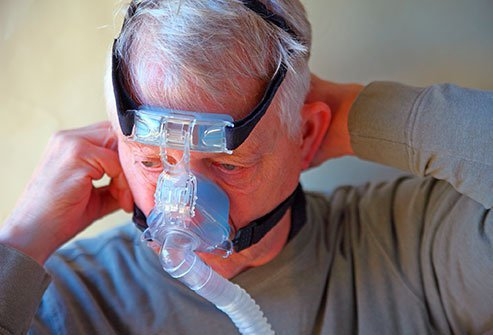 A CPAP, or continuous positive airway pressure, machine consists of a mask and motor that pumps air into the airways at night to treat sleep apnea.