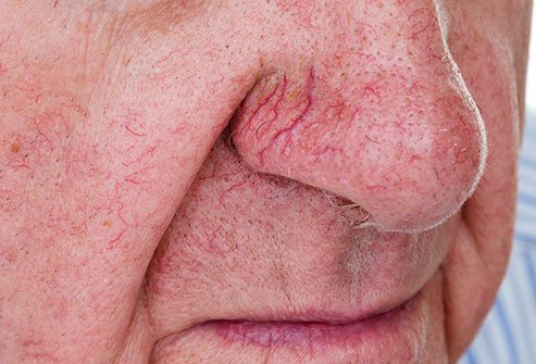 Telangiectasias are a sign of CREST syndrome.