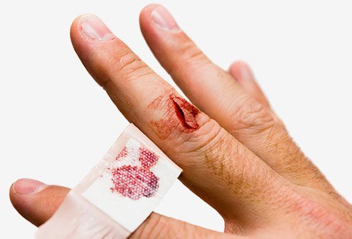 The treatment of a cut or laceration depends upon the severity of the wound.