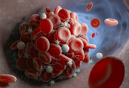 Illustration of a blood clot forming in a blood vessel.