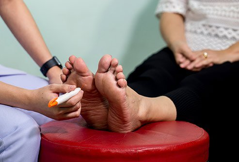 Diabetic Foot Problems Symptoms Causes Treatment Guidelines