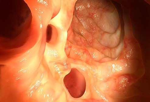 Image of diverticuli in the colon.