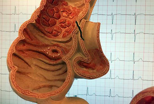 Pictured are different ways diverticula may appear in the intestine -- the black line shows a fistula, or abnormal connection between parts of the bowel.