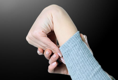 Hypermobility is a sign of Ehlers-Danlos syndrome.