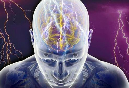 Epilepsy is a condition in which a person experiences symptoms such as recurrent seizures.