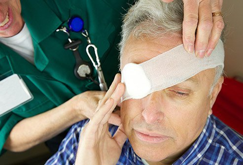 Picture of a doctor putting a bandage over a man's eye.