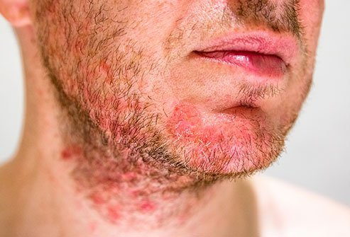 Forehead Rashes, Causes,Treatment,Prevention