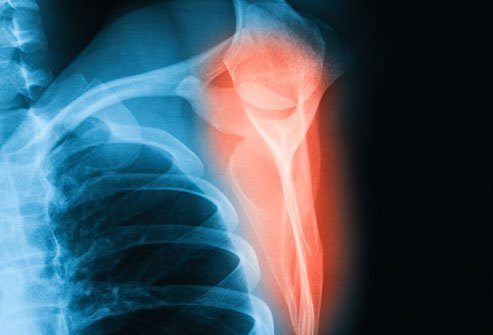 The shoulder blade or scapula is responsible for the complex, smooth movement of the shoulder muscles, and it takes lots of trauma to break it.