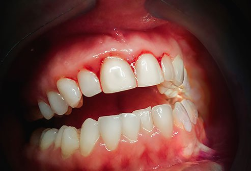 Gingivitis is the inflammation of the gums caused by bacteria.