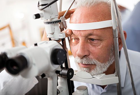 Lens-particle glaucoma is a type of glaucoma caused by leakage of material from inside the eye lens.