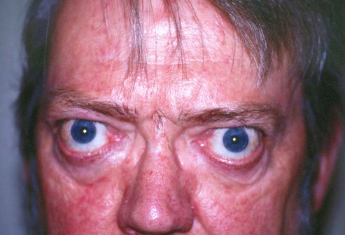 Bulging eyes are a common sign of Graves' disease.