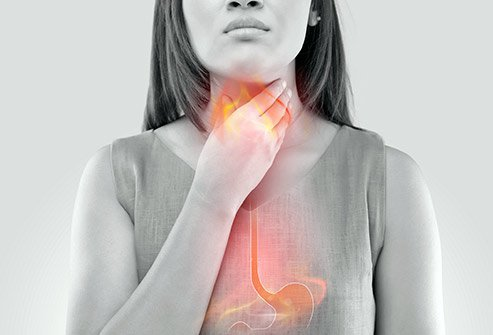 Dietary changes, home remedies, and medications can help to alleviate heartburn symptoms.