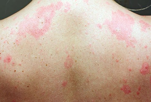 Hives are red blotches or bumps on the skin caused by an immune reaction.