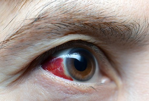 Picture of a hyphema or bleeding in the eye.