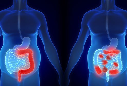 Picture of Crohn's disease and ulcerative colitis.