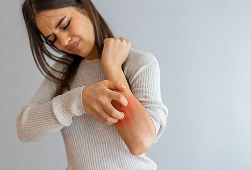 Itching may be a sign of a skin problem or a more serious systemic disorder. Skin itching is also a side effects of some medications.
