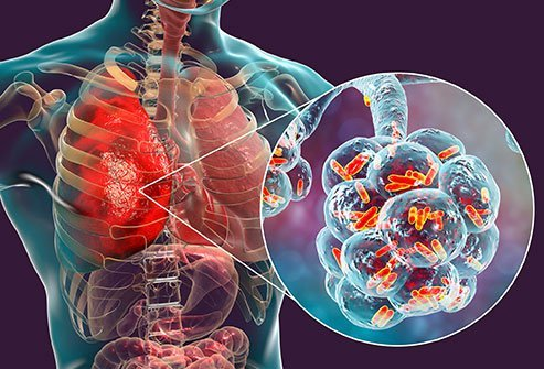 Legionnaires' disease causes a severe form of pneumonia.