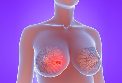 Picture of a breast with a lump.