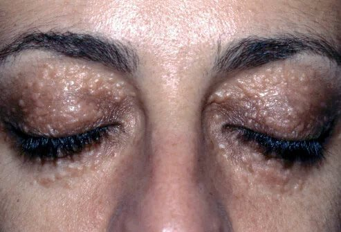 Picture of syringomas on the eyelids of a Marfan syndrome patient.