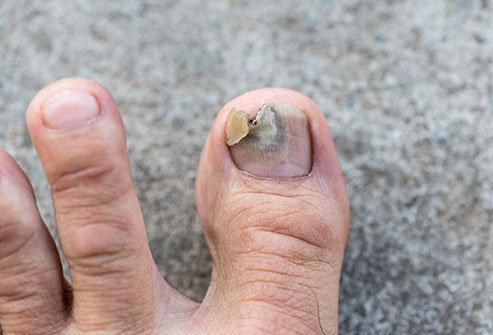 Picture of a broken toenail and bruising.