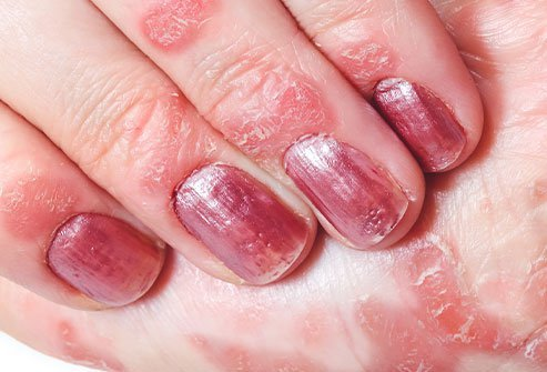 Finger nail psoriasis symptoms include patches of raised red skin, thickening of skin under the nail, and nail pitting.