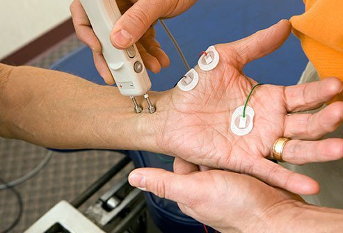 A nerve conduction velocity test measures nerve function to make a neuropathy diagnosis.