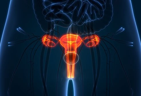 Pelvic inflammatory disease causes painful inflammation of the female reproductive organs, including the cervix, uterus and other structures. PID is caused by the sexually transmitted bacterial infections chlamydia or gonorrhea.