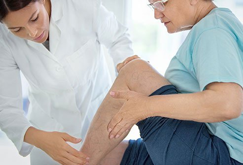 A doctor examines a person with peripheral vascular disease.