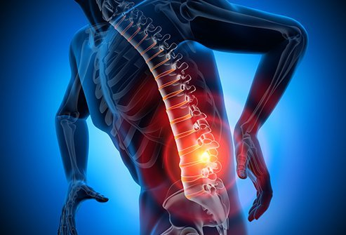 A pinched nerve can cause symptoms like pain, numbness, tingling, or weakness along the path of the pinched nerve.