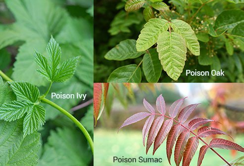 Poison ivy rash responds to soap and water, anti-itch lotions and baths, and steroid creams if the rash is severe.