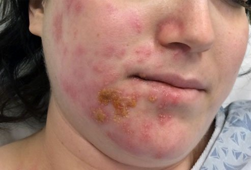 Ramsay Hunt syndrome is a type of shingles flare that causes facial pain, paralysis, and rashes.