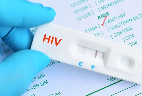 A rapid HIV test provides results in under 20 minutes.