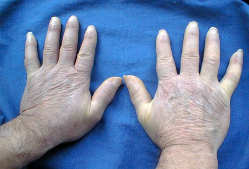 Skin hardening first affects the fingers in people with scleroderma.